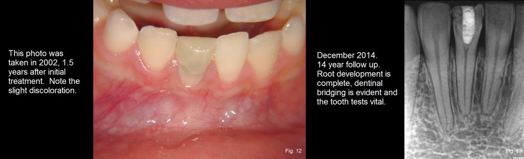 dental trauma figures 12-13