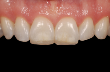 The Impact From the Hygiene Operatory on Composite Restorations: Part I