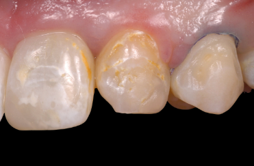 The Impact From the Hygiene Operatory on Composite Restorations: Part II