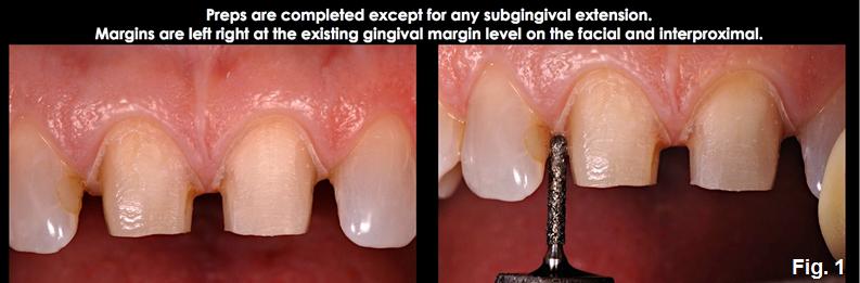 subgingival margin