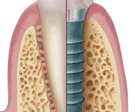 3.26ineberry implant