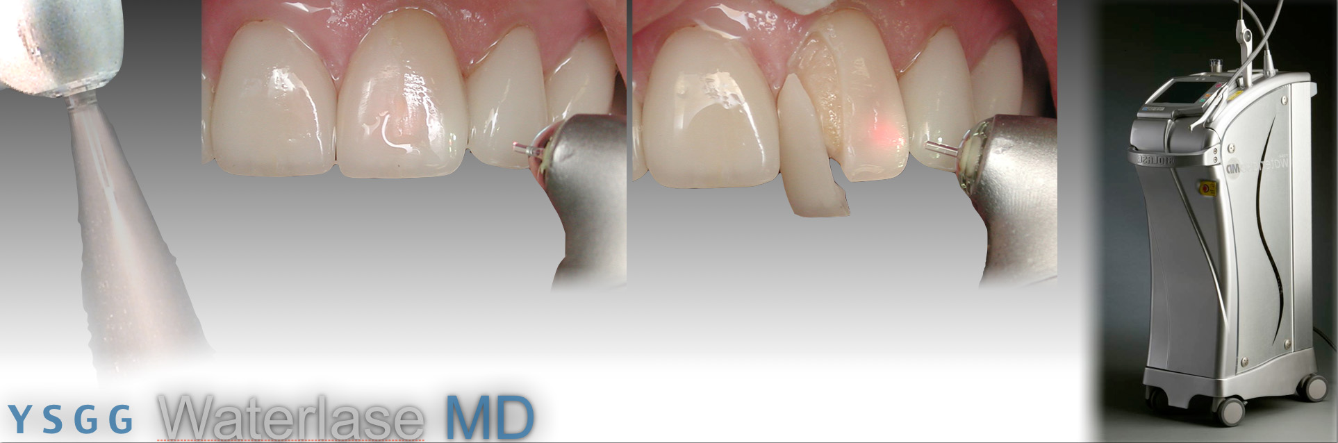Removing Ceramic Veneers With a Laser: Part 1