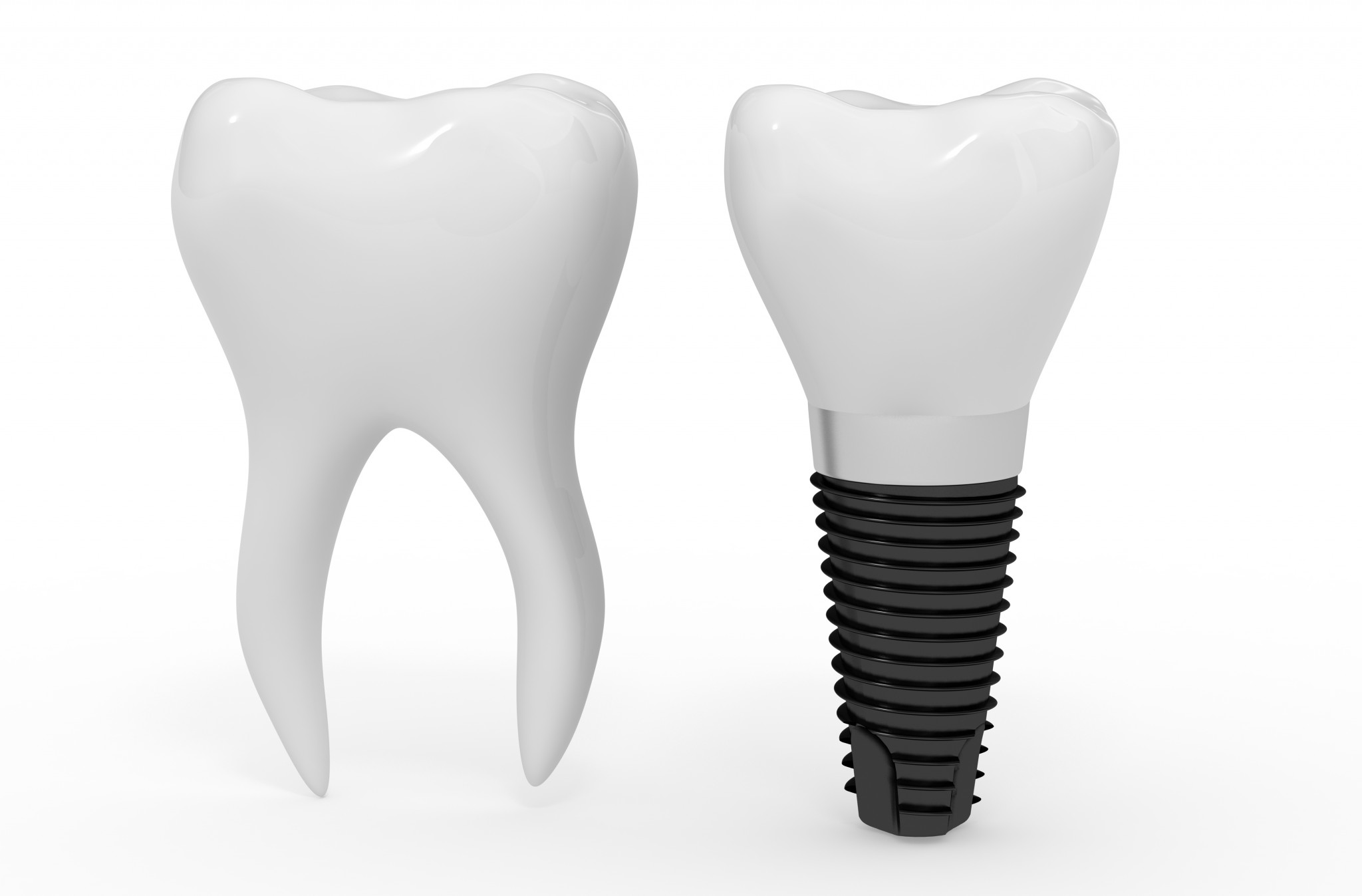 Occlusion: Teeth vs. Implants