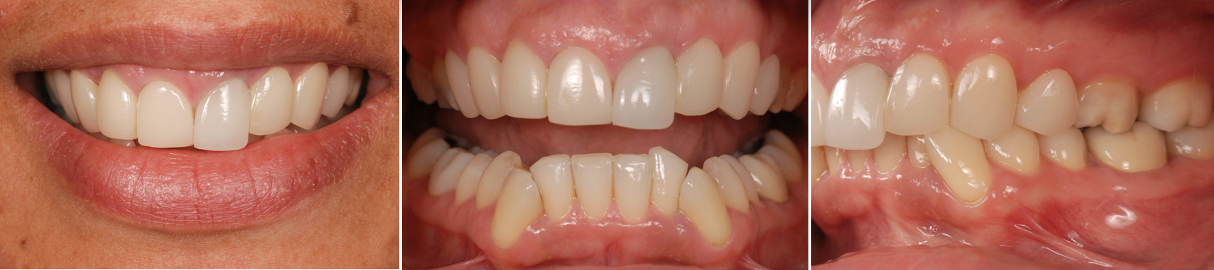 Removing Ceramic Veneers With a Laser: Part 2