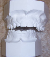airway and dentistry figure 4