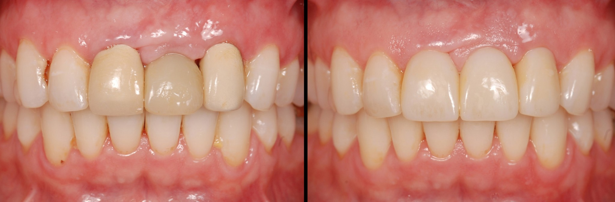 Polishing Provisional Restorations