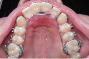 Missing Laterals and Esthetic Space Maintenance