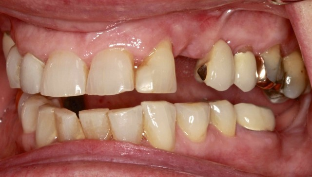 Maintaining Edentulous Spaces … Are There Consequences?