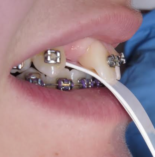 Leaf Gauge and the Orthodontic Finish