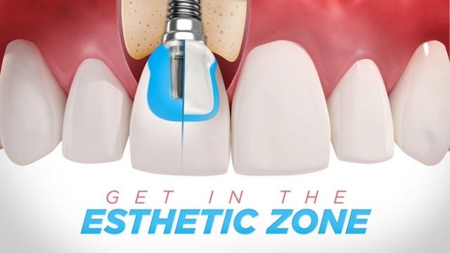 Get in the Esthetic Zone: Implant Abutments