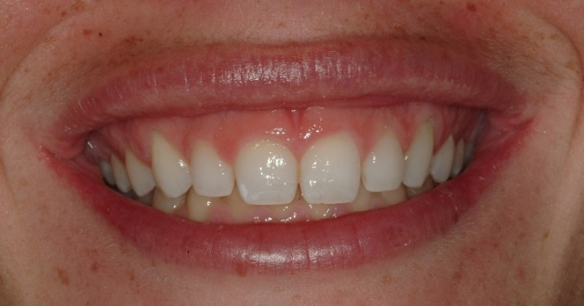 Gummy Smiles: The Importance of a Correct Diagnosis