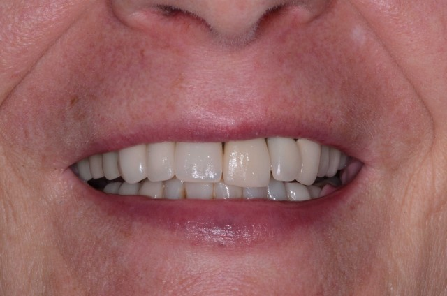 Dental Implants: Modifying Provisionals