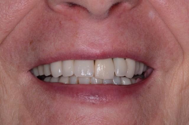 Dental Implants: Modifying Provisionals