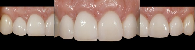 Potential Implant Problems Due to Continued Facial Development and Tooth Eruption