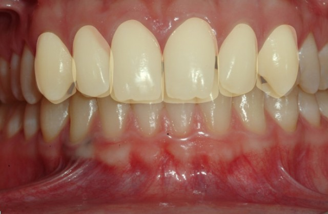 Orthodontic vs. Restorative Treatment?