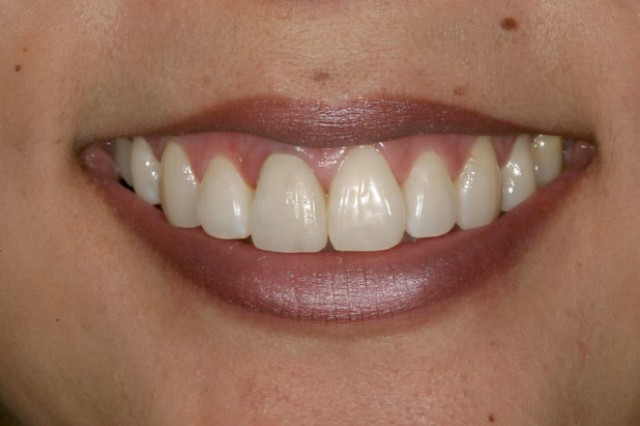 Why Is It So Difficult to Match a Single Central Incisor?