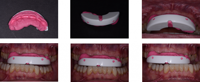 Selecting the Best Temporary Occlusal Appliances