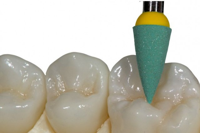 Best Practices for Re-establishing Occlusal Anatomy
