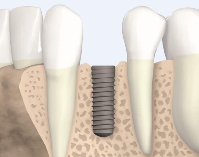"New Spear Online Course: ""Understand the Biology of Implant Osseointegration"""