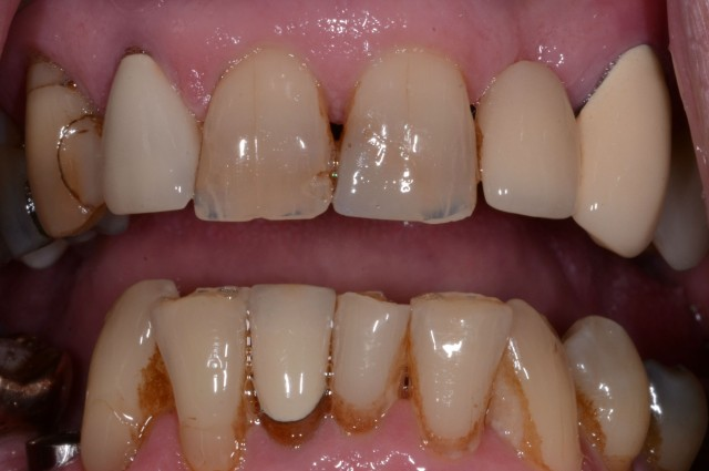 An Insidious Yet Often Missed Dental Wear Pattern