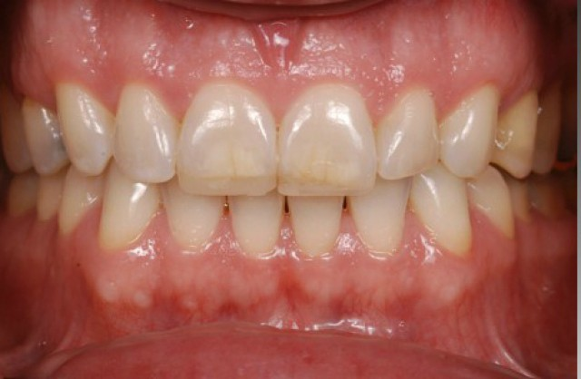 Why You Should be Using Glycerin on Your Composite Restorations