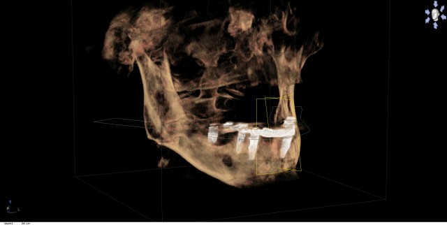 How a Cone Beam CT Saved a Dental Patient's Life