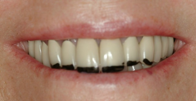 How a Camera and Sharpie Can Improve Dental Case Acceptance