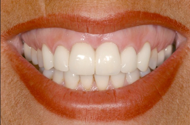 The Guide to When and When Not to Splint Restorations