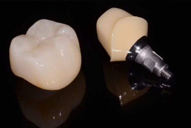 """New Spear Online Course: """"Implant Treatment Planning: Developing the Preliminary Restorative Plan"""""""
