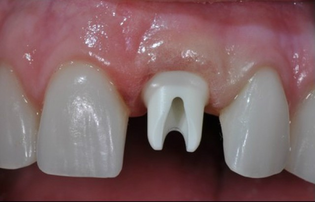 Single Anterior Implants Made Easy As 1-2-3