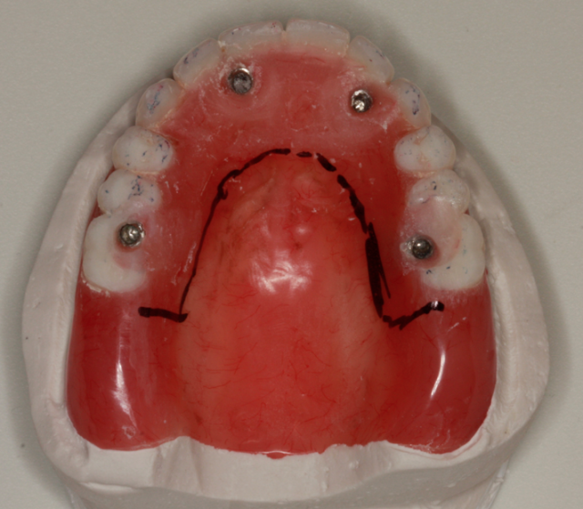A Step-by-Step Guide to Converting Denture to Interim Hybrid Prosthesis