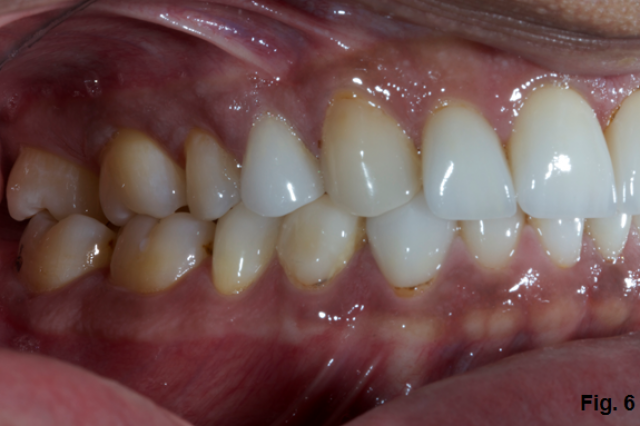 Where's the Overjet: Why Veneers Are Breaking Off
