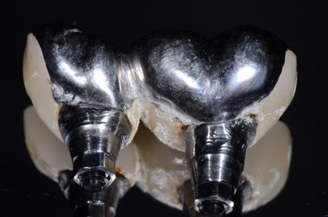 5 Tips For Better Implant Restorations