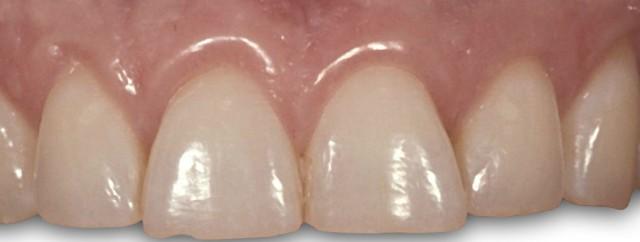 Outcome-based Preparation Design of Anterior Teeth: Part I