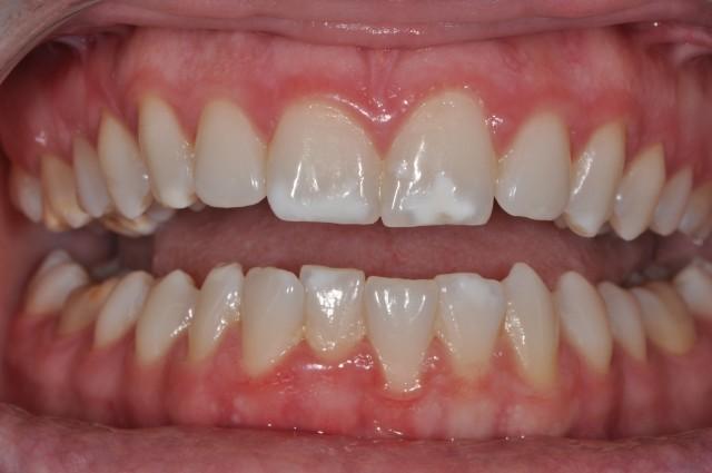 MI Paste Plus and White Spot Lesions