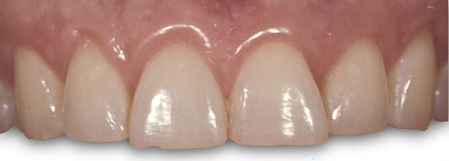 Outcome-Based Preparation Design of Anterior Teeth Part II: Single Dimension Problems