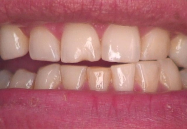 8 Steps for the Esthetic 'Emergency' Anterior Composite