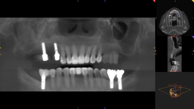 Creating a Radiographic Template for Implant Planning Step-by-Step