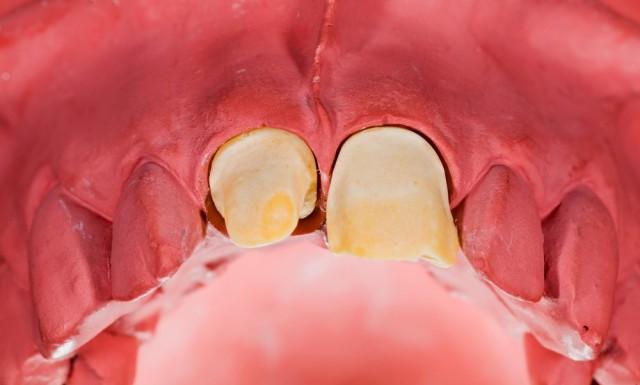 Outcome-Based Preparation Design Anterior Teeth: Part III
