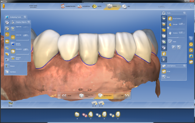 Digital Dentistry: A Workflow in the Esthetic Case