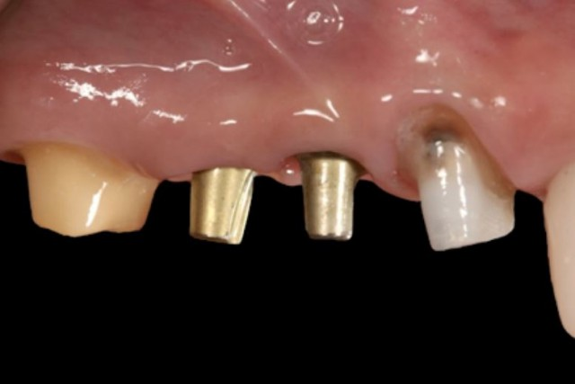 New Spear Online Course: Abutment Selection