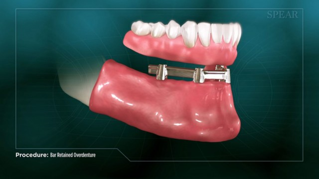 Spear Releases Patient Education Video on Bar-retained Overdentures