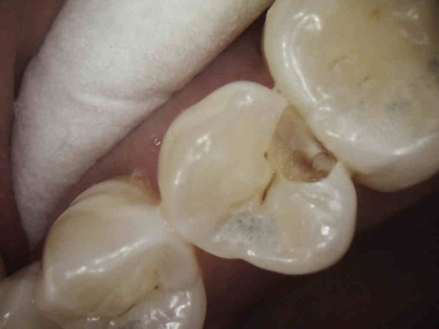 Caries Detection, Part I: What Do You See?