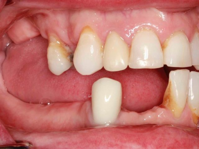 """Spear Releases """"Fixed Hybrid Denture"""" Study Club Modules"""