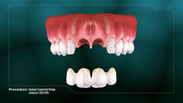 Spear Releases Patient Education Videos on Implant-supported Bridge