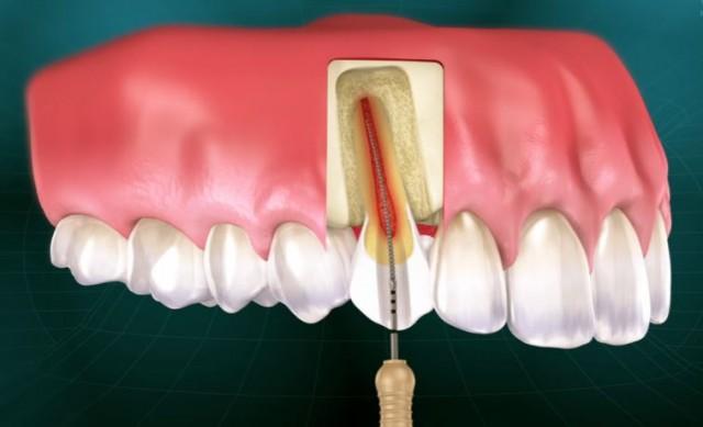 Dentists and Endodontics: The New Paradigm