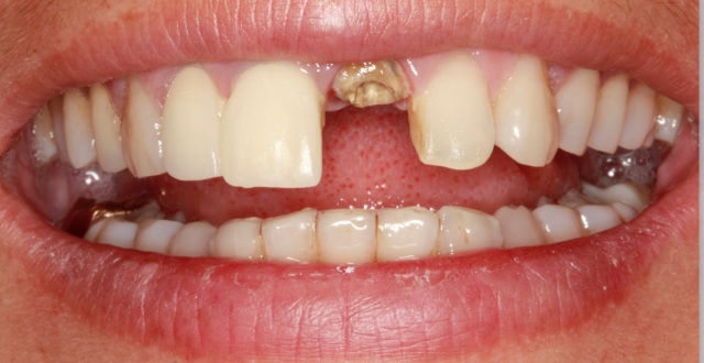 Do Patients Need Dental Implants?