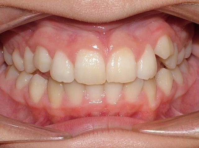 5 Keys for Early Palatal Expansion