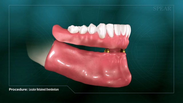 Spear Releases Two Locator-Retained Overdenture Patient Education Videos