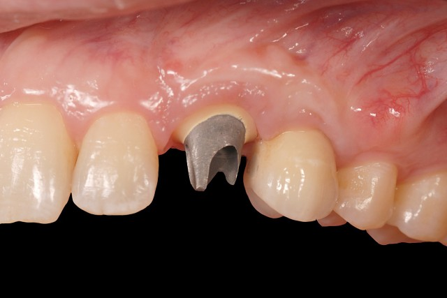 Who Chooses the Implant Abutment: The Dentist or the Technician?